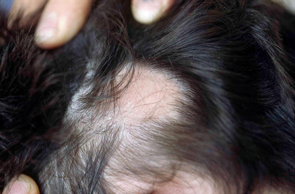 Die Vitamine des Haarausfalles pantowigar