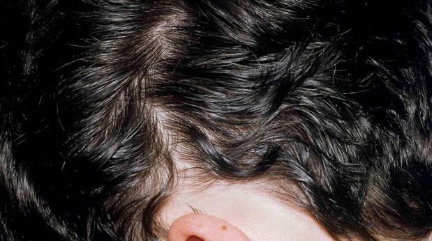 Das Ameisenöl des überflüssigen Haares