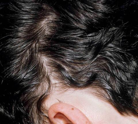 Hilfe Bei Kreisrundem Haarausfall Quell Onlinede