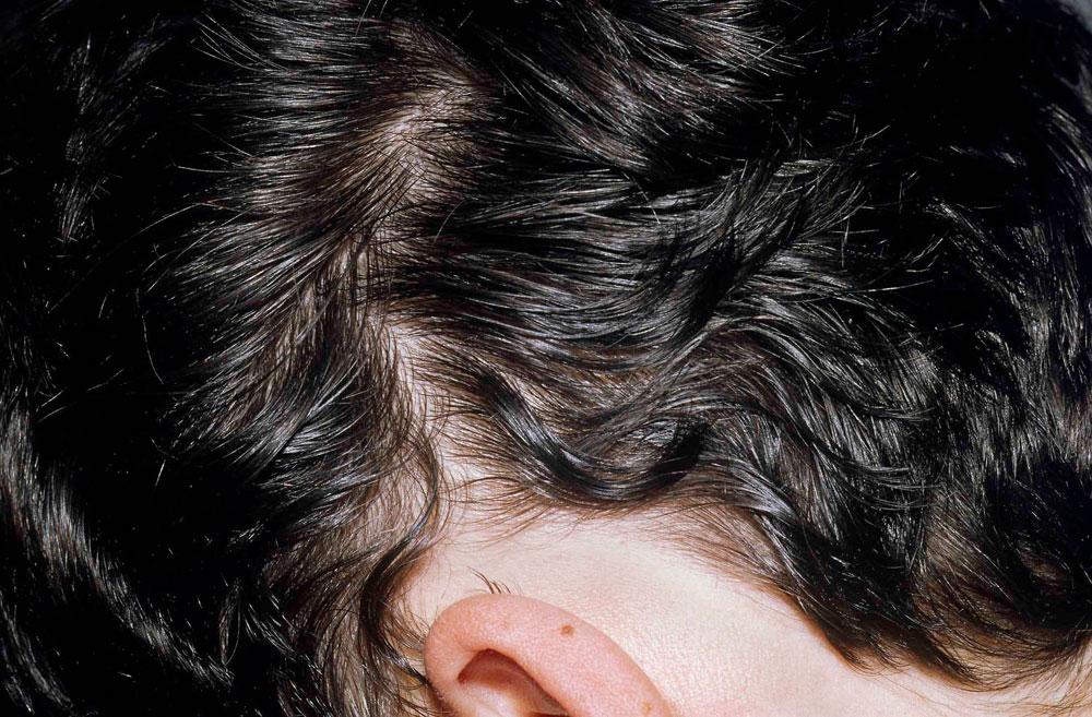 Hilfe bei kreisrundem Haarausfall